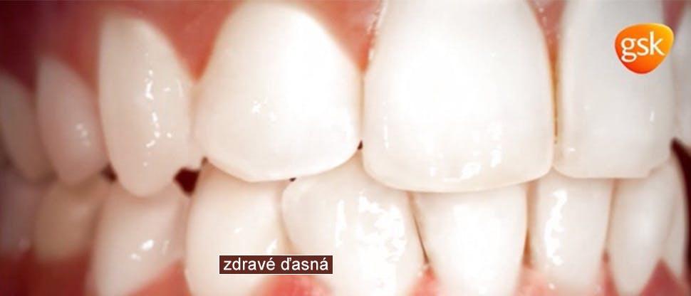 Mechanizmy ochorenia parodontu