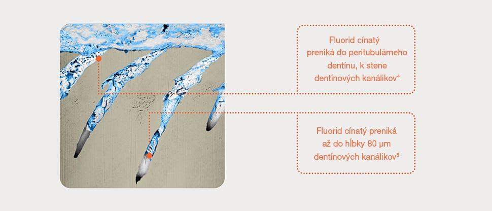 Reprezentatívny snímok dentínových kanálikov pomocou dvojzväzkového mikroskopu