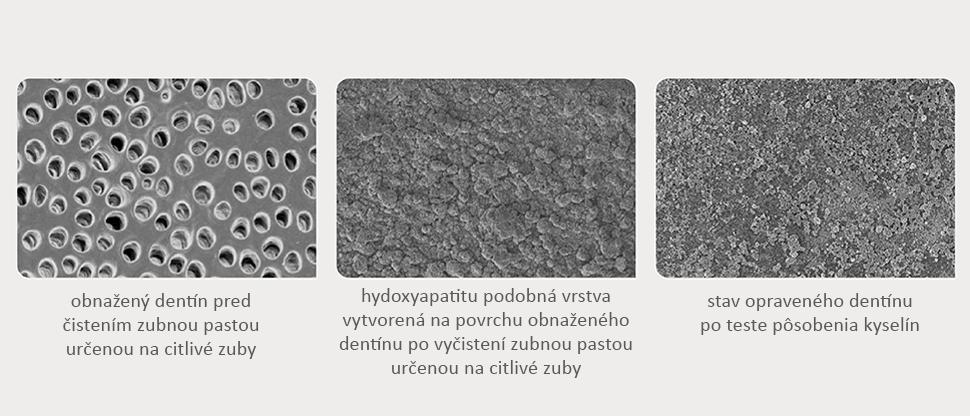 Snímky povrchu dentínu z rastrovacieho elektrónového mikroskopu (SEM)
