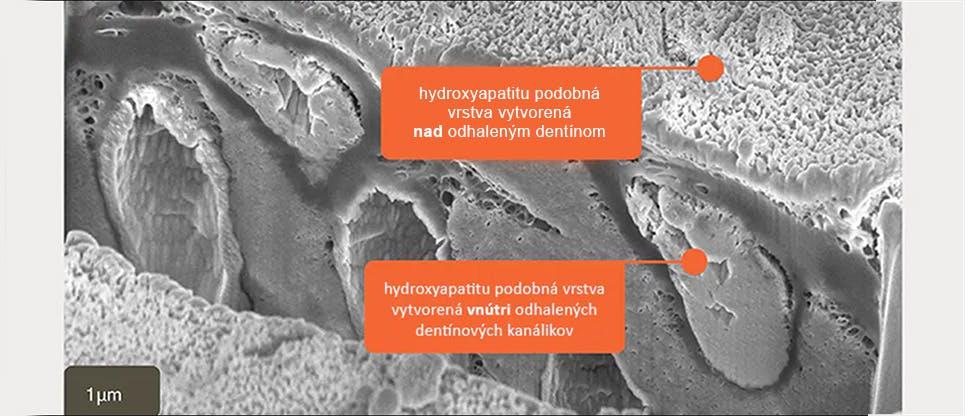 Snímok SEM priečneho rezu in vitro