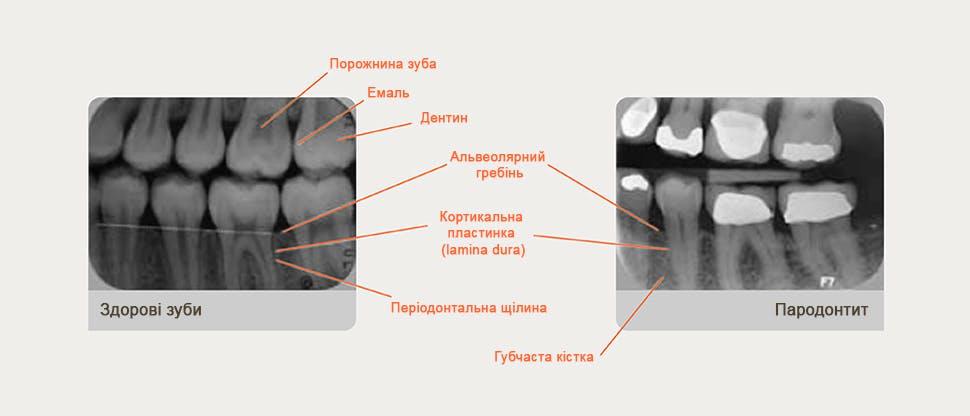 Рентгенограма з коментарями