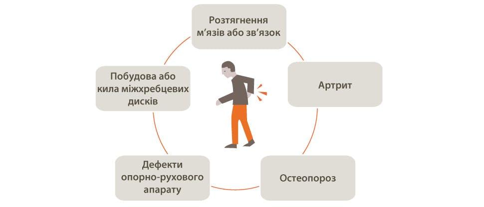 Графічне зображення потенційних причин болю в спині