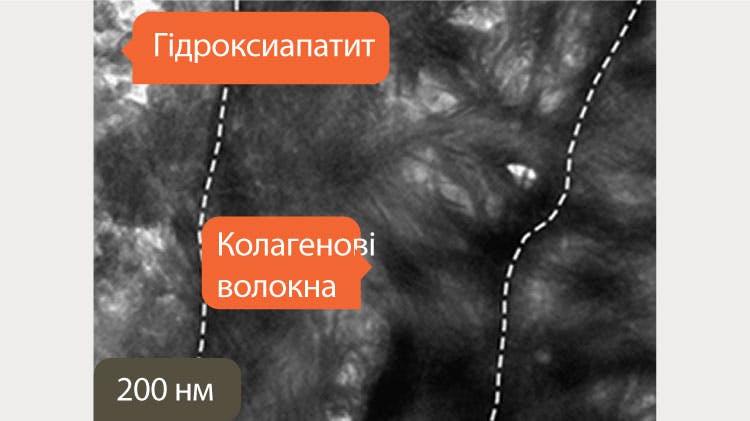 ПЕМ зображення дентину у масштабі 200нм