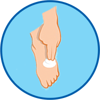 Athletes foot cure wash and dry feet then apply LamisilATcream