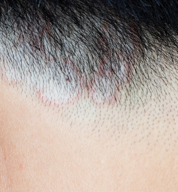 what are the signs of ringworm
