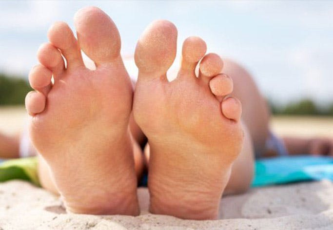 Where to see athlete's foot symptoms on your feet