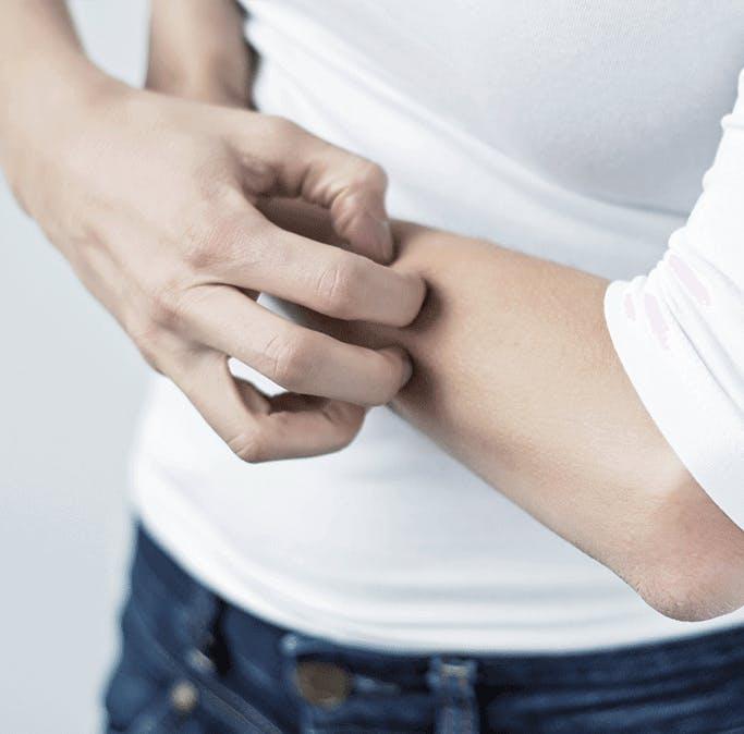 팔을 긁고 있는 여자의 손 - 라미실