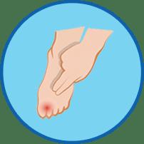 환부를 가리키는 손 - 라미실