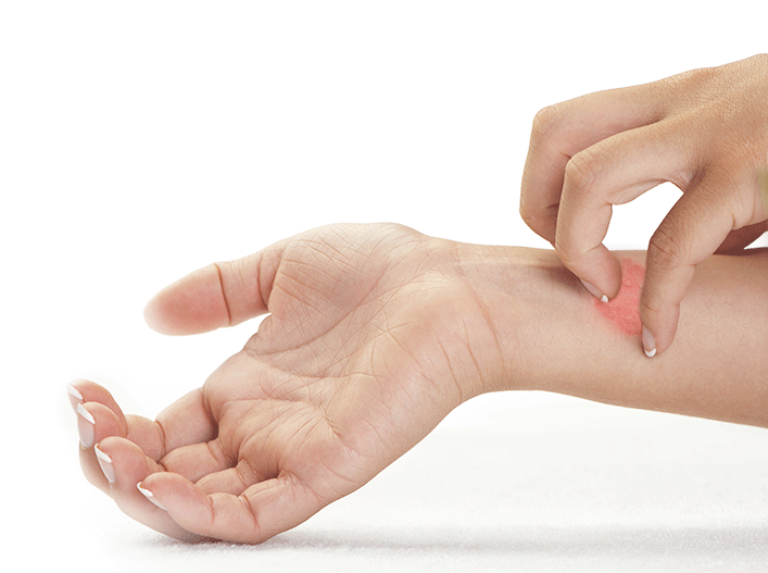손목을 긁고 있는 손 - 라미실