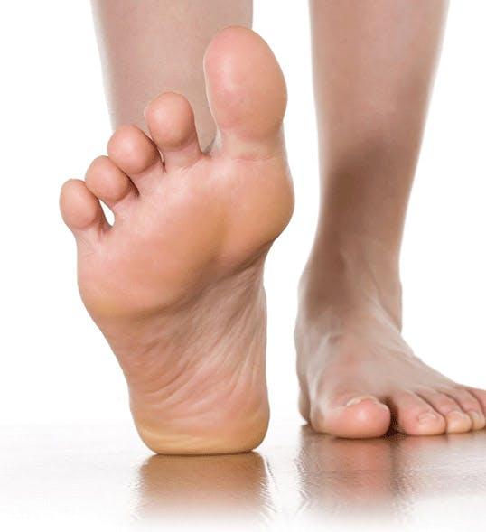 무좀 증상 설명과 사람의 발 - 라미실