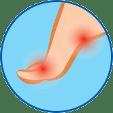 Эффективное лечение всех симптомов грибка стопы