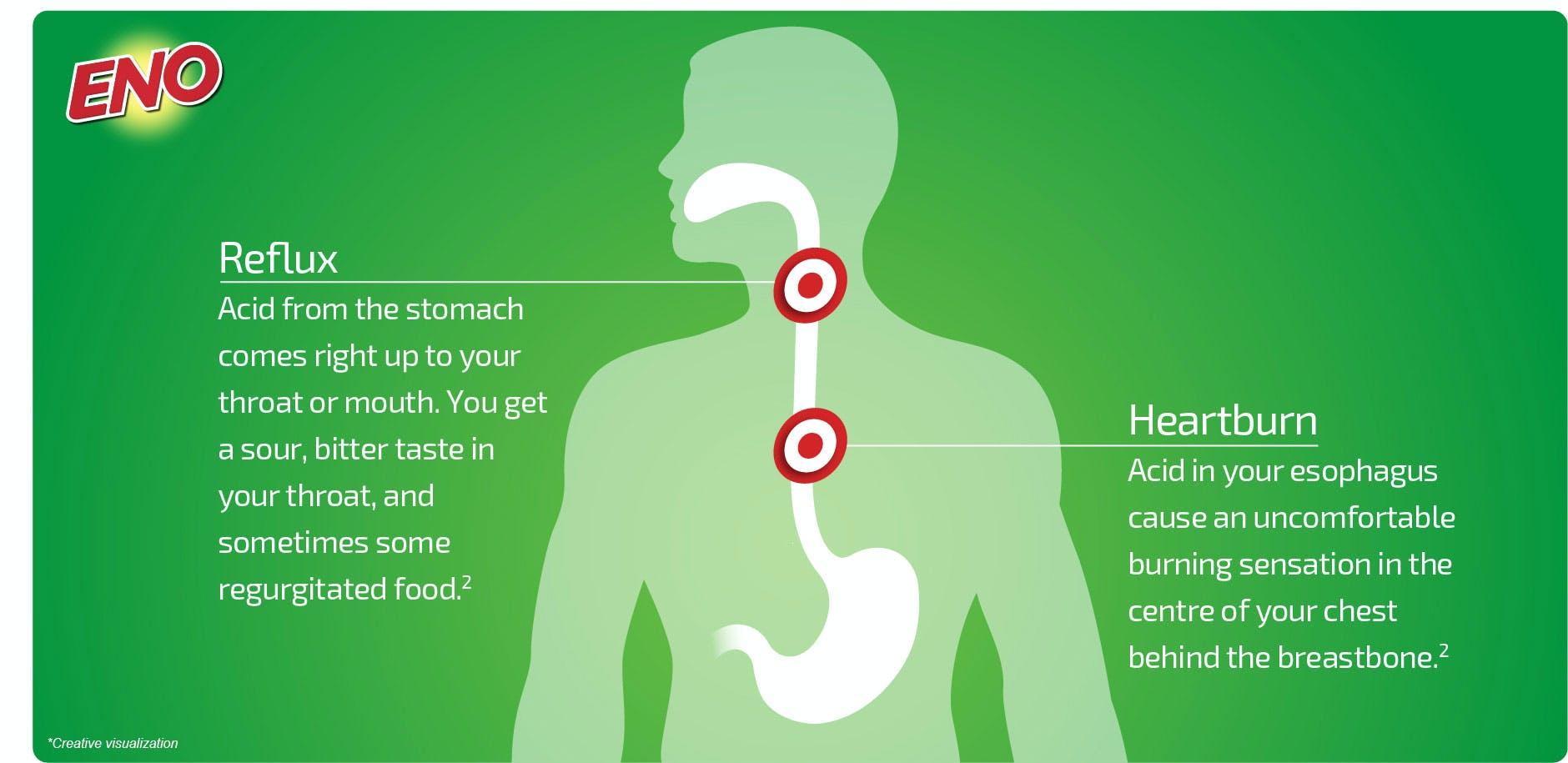 Diagram to describe reflux and heartburn