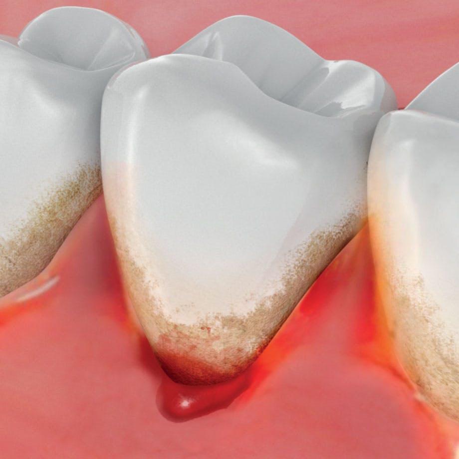 Ilustrace zobrazující krvácení dásní