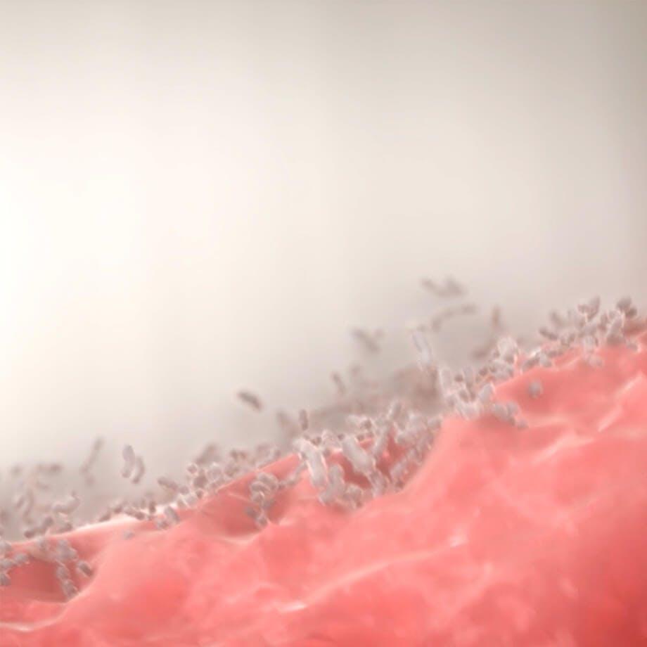 Ilustrace zobrazující bakterie, které se usazují mezi zubem a dásní