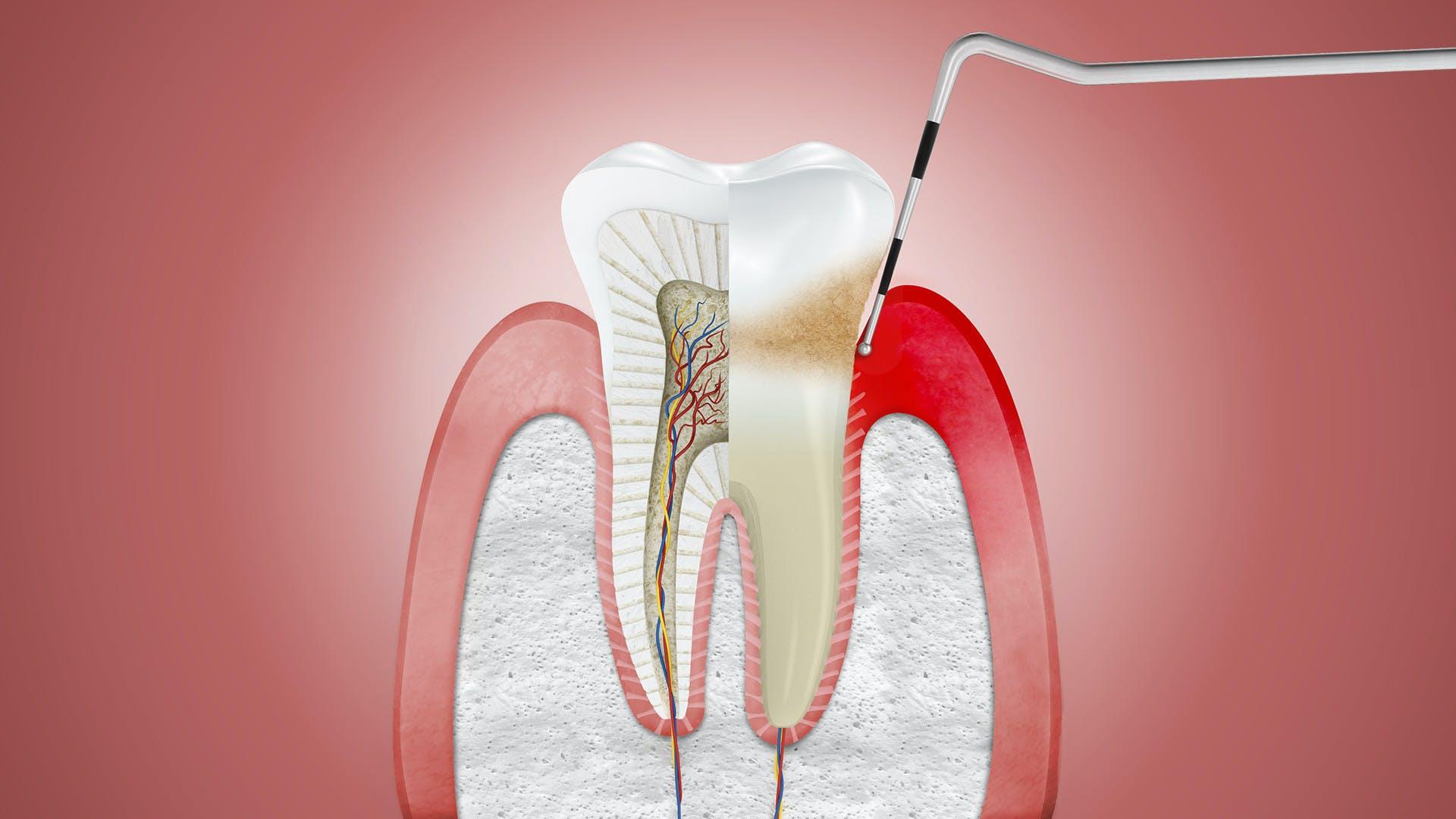 Ilustrace zobrazující dáseň zasaženou zánětem a ošetřovanou dentálním nástrojem