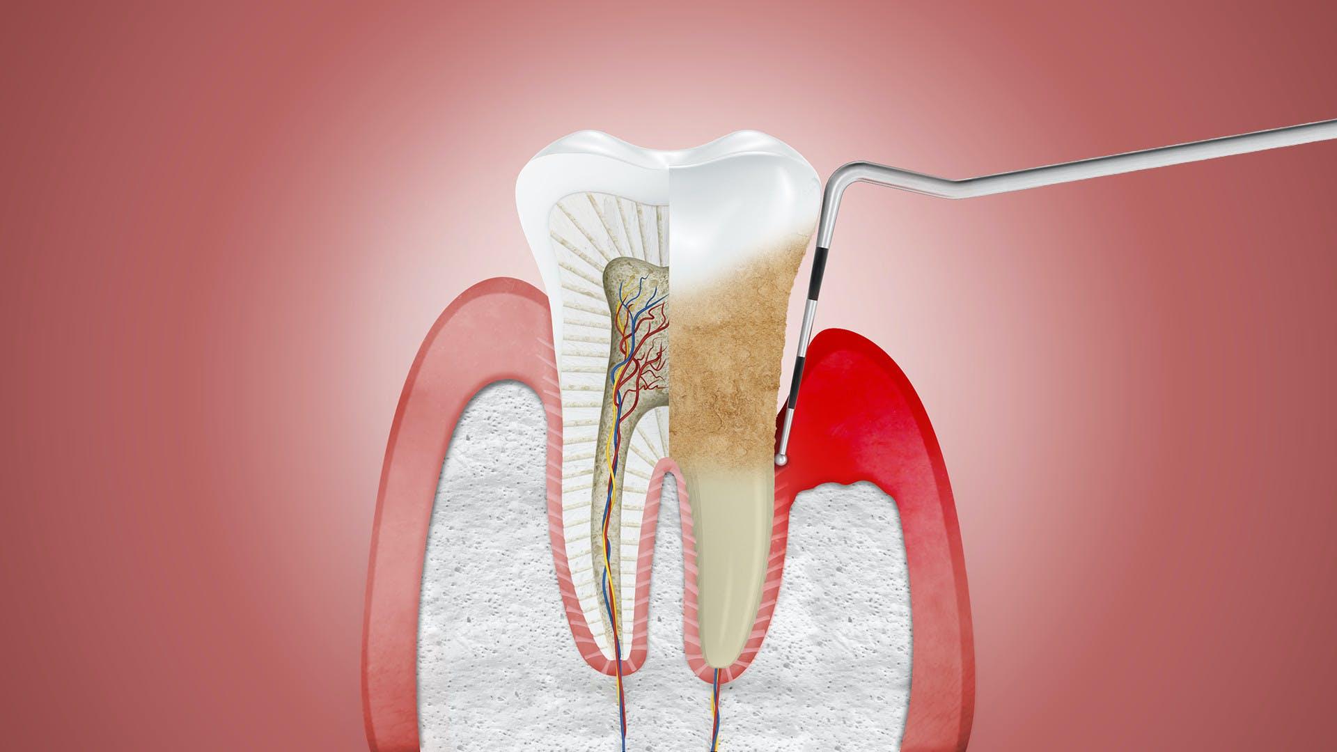Ilustrace zobrazující dáseň trpící periodontitidou a ošetřovanou dentálním nástrojem