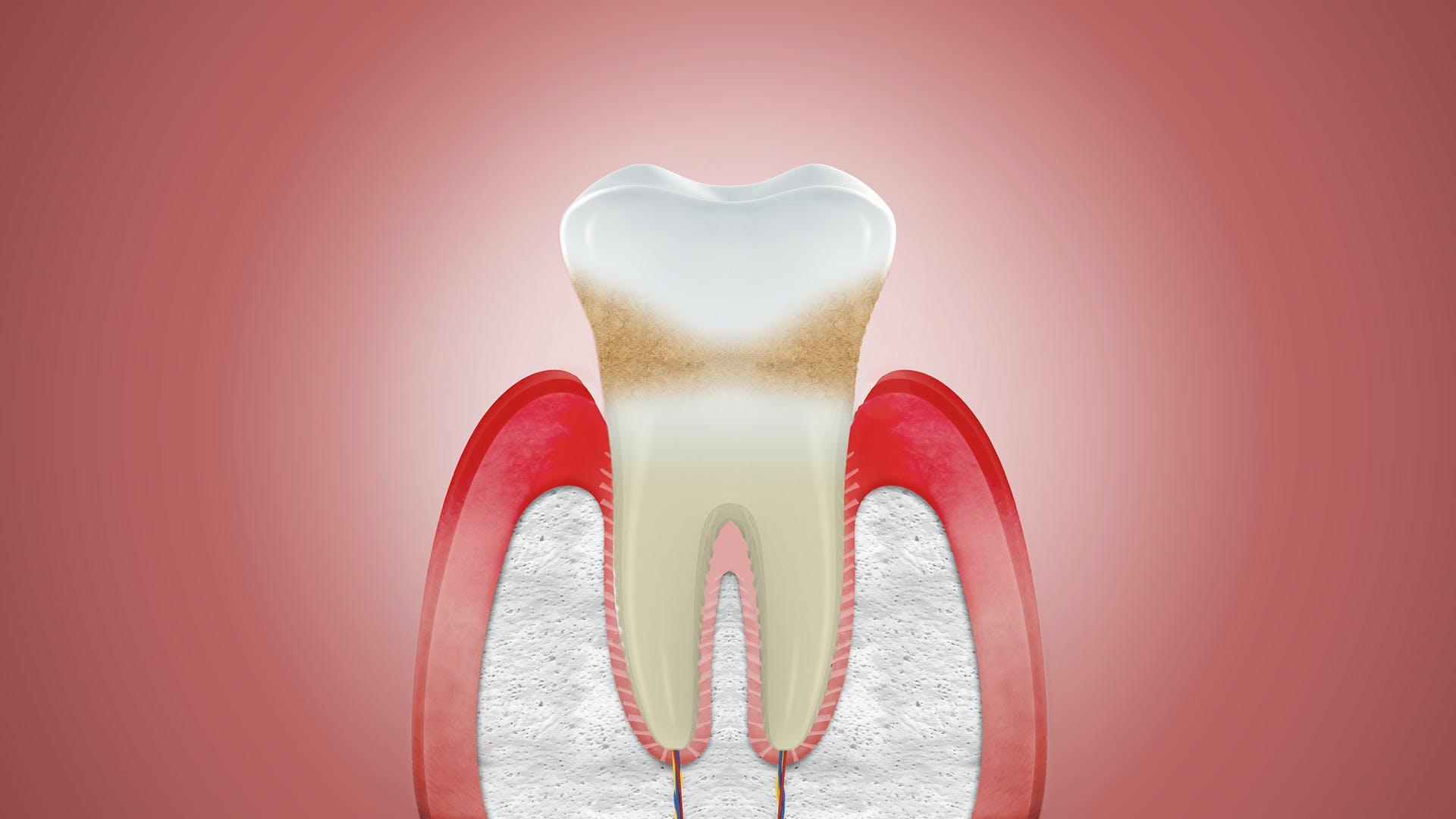 Darstellung von Zahnfleischschwund. Was tun bei Zahnfleischrückgang? Hier lesen.