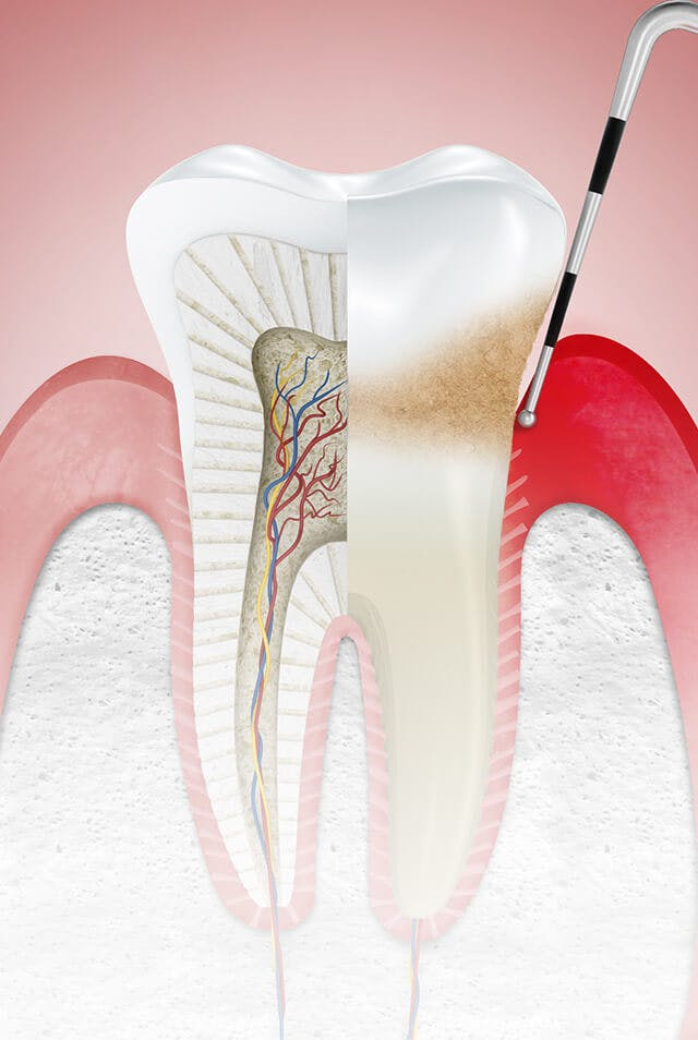 Illustration of gums affected by gingivitis and the label 'Stages'