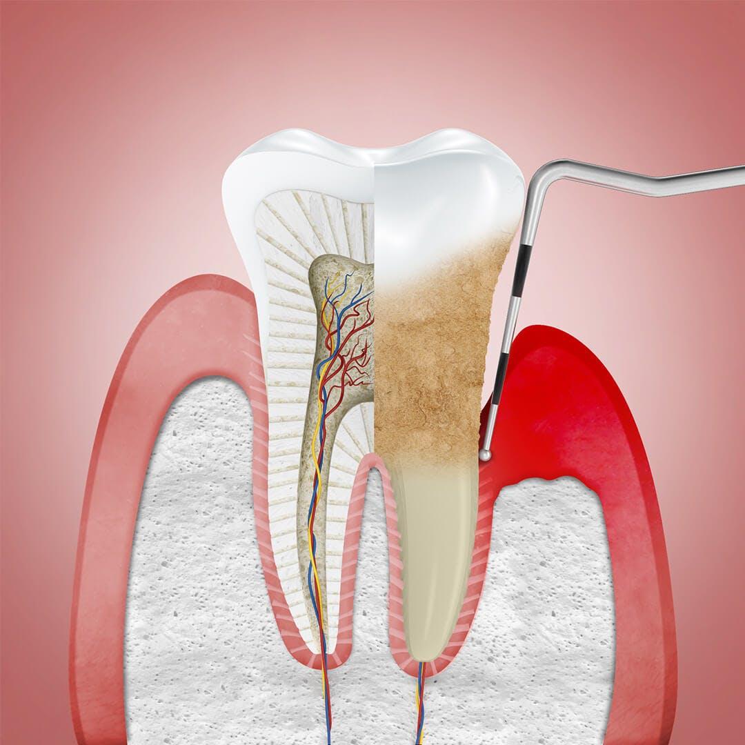 Dantenų uždegimas ir odontologo įrankis