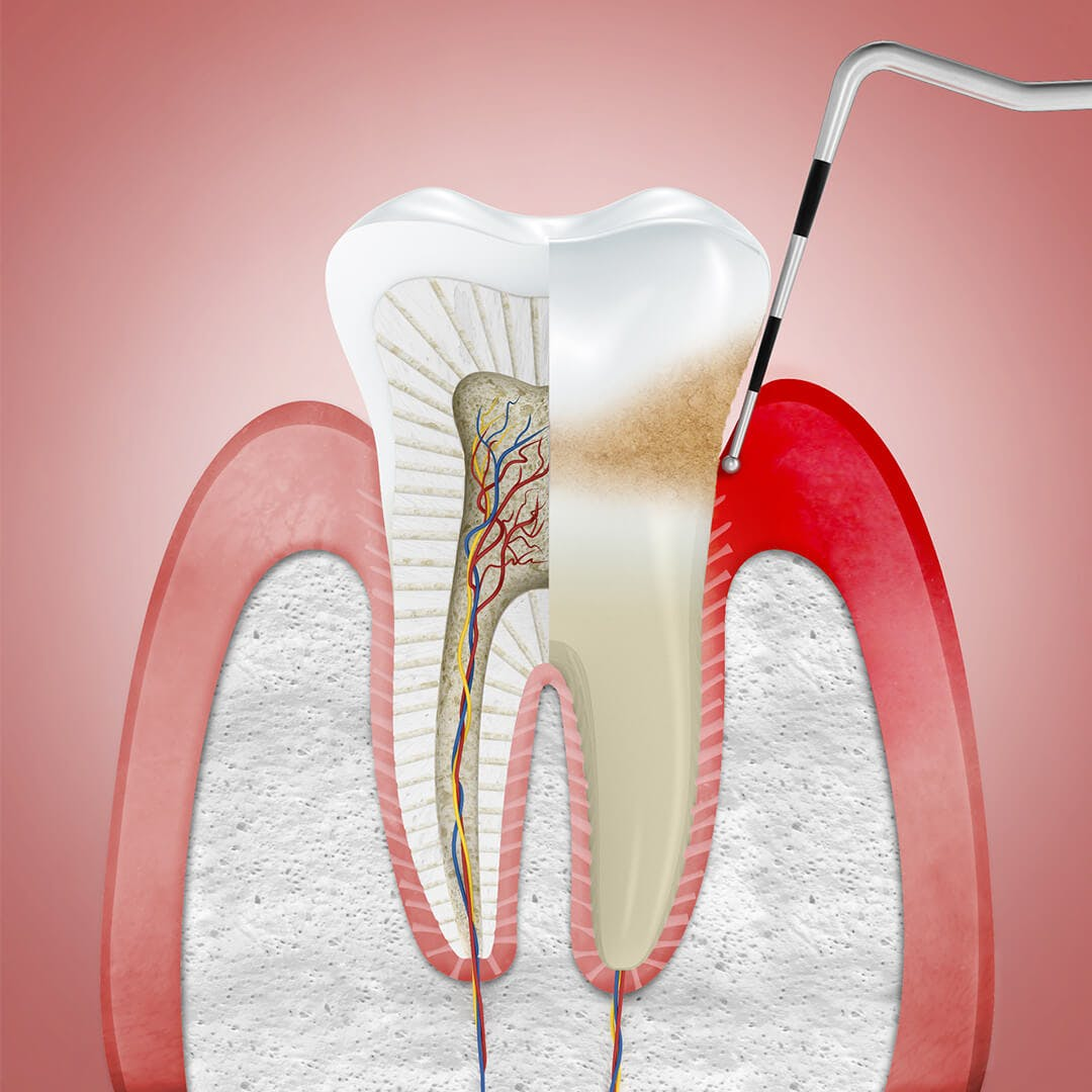 Illustration av tandkött påverkat av gingivit (tandköttsinflammation), med ett tandläkarredskap