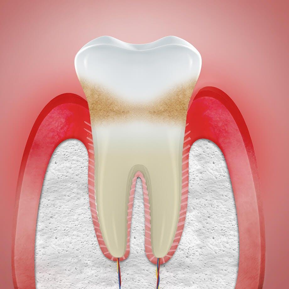 Illustration av svullet tandkött