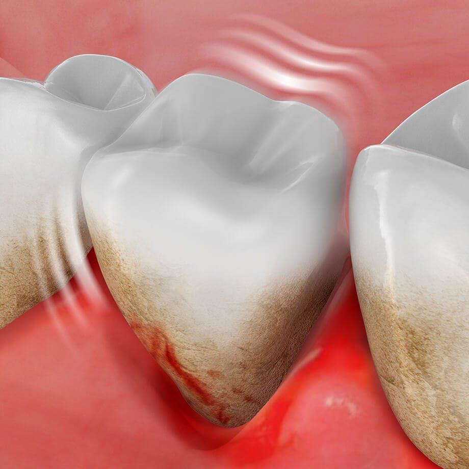 Ilustración de un diente suelto