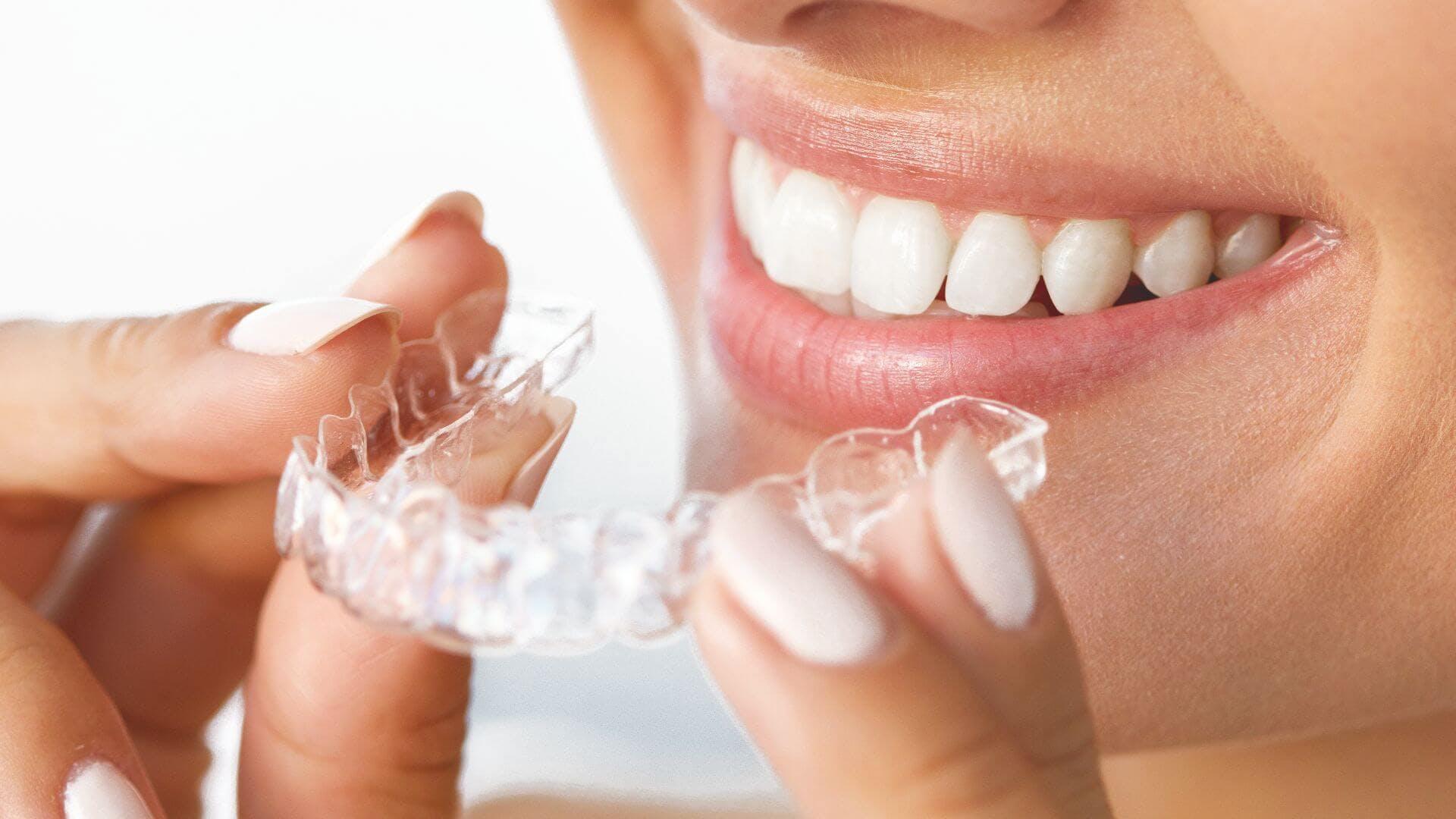 Mujer colocándose un retenedor en la boca