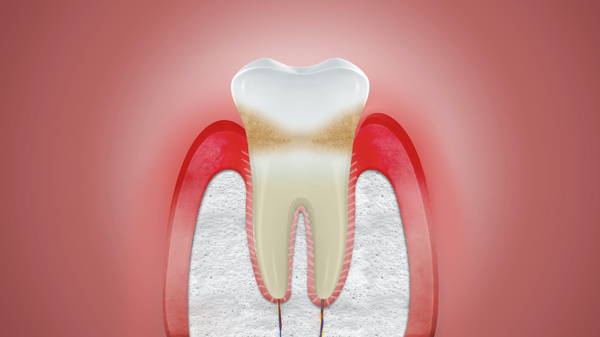 Illustration of swollen gums
