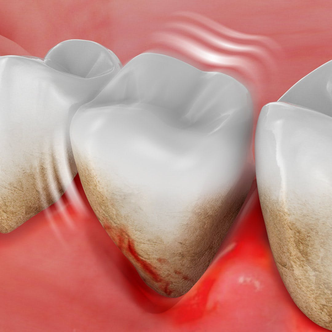 What is periodontitis and how can it lead to tooth loss?
