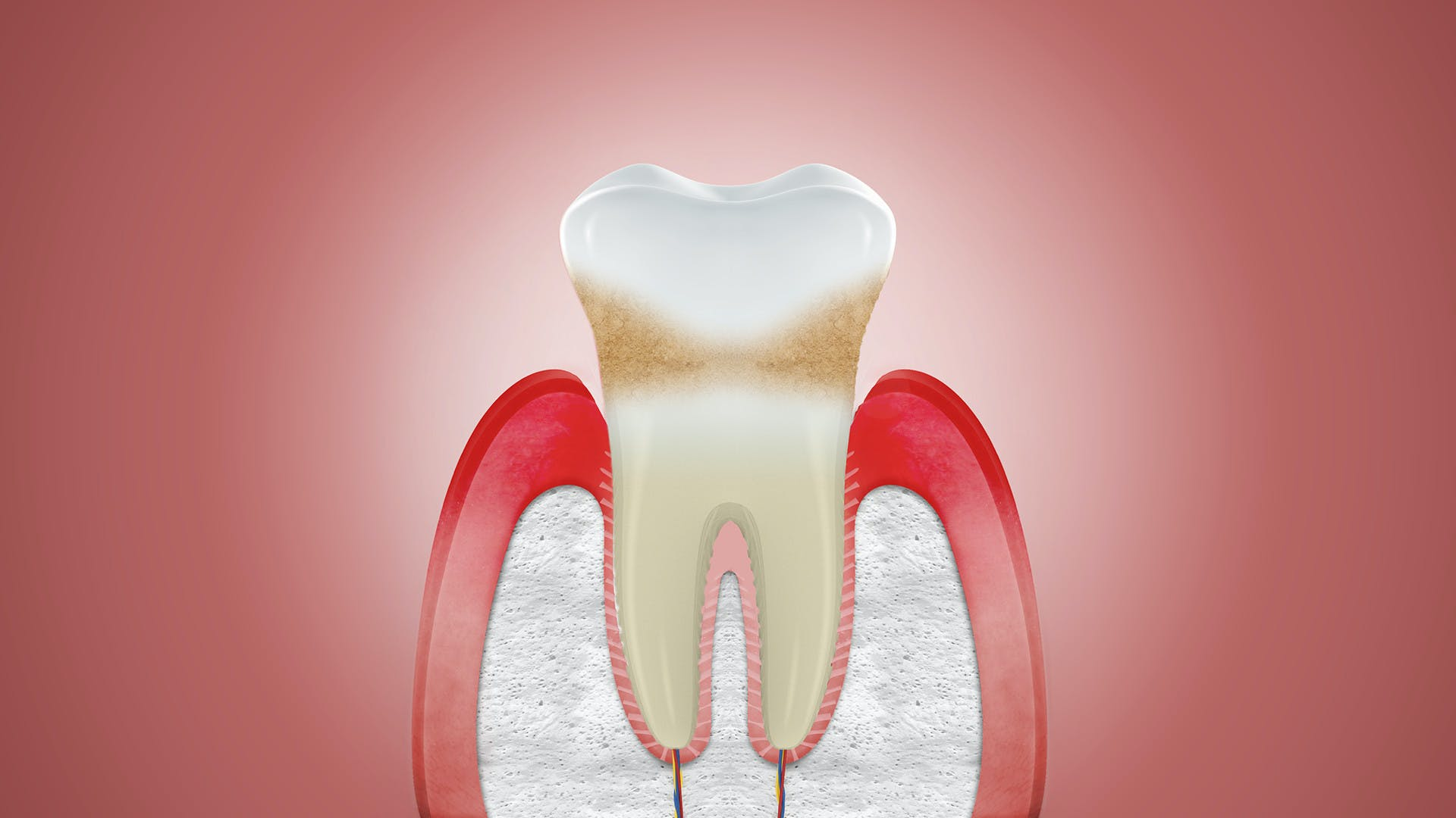 Illustration of receding gums