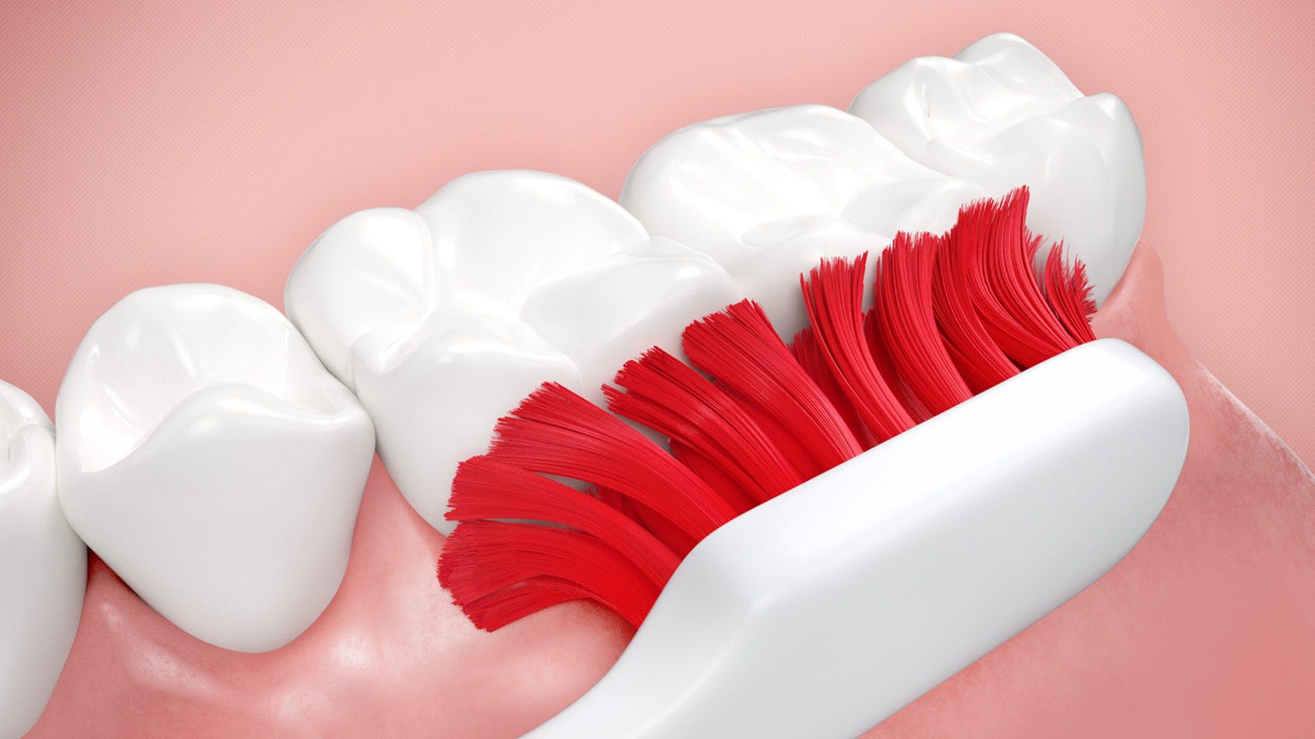 Kako možete da sprečite krvarenje desni prilikom pranja zuba