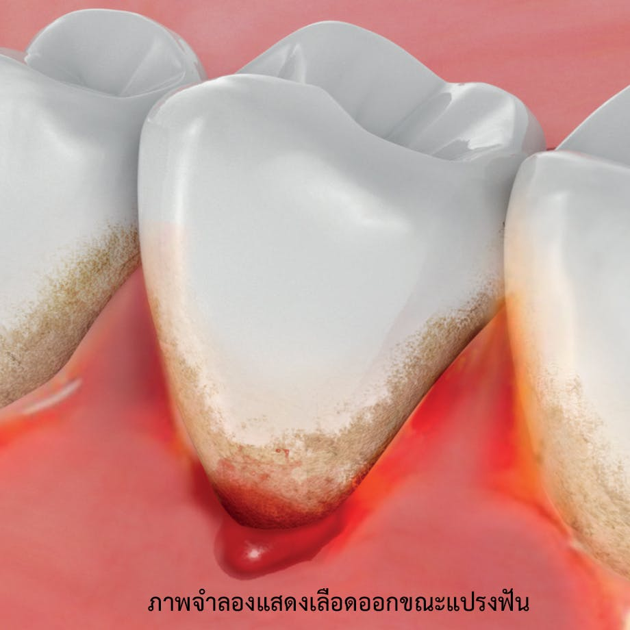 ภาพจำลองแสดงเลือดออกขณะแปรงฟัน