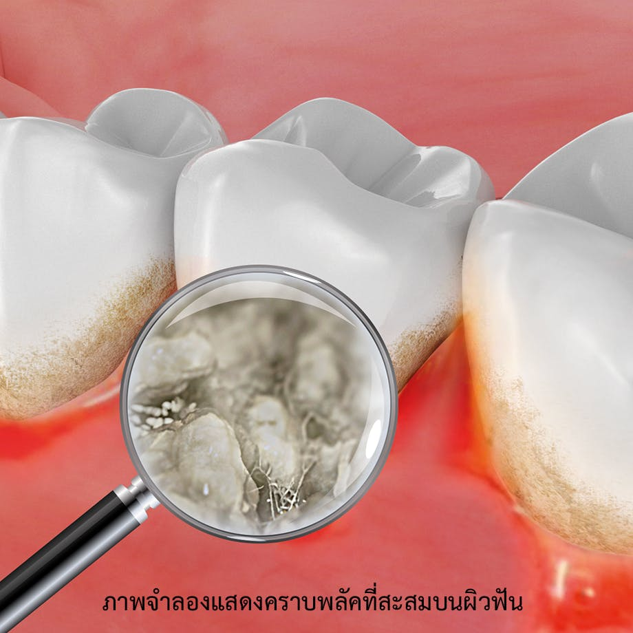 ภาพจำลองแสดงคราบพลัคที่สะสมบนผิวฟัน ทำให้เกิดกลิ่นปาก