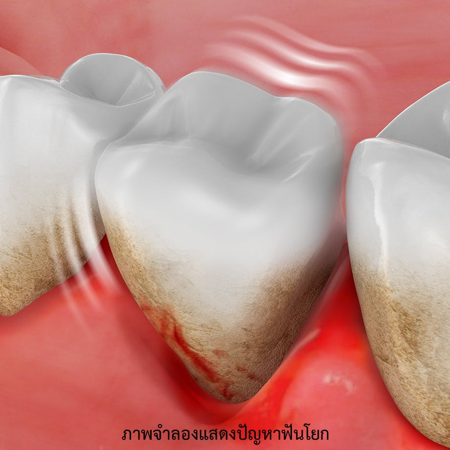 ภาพจำลองแสดงปัญหาฟันโยก และการสูญเสียฟัน