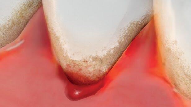 Illustration of a bleeding gum