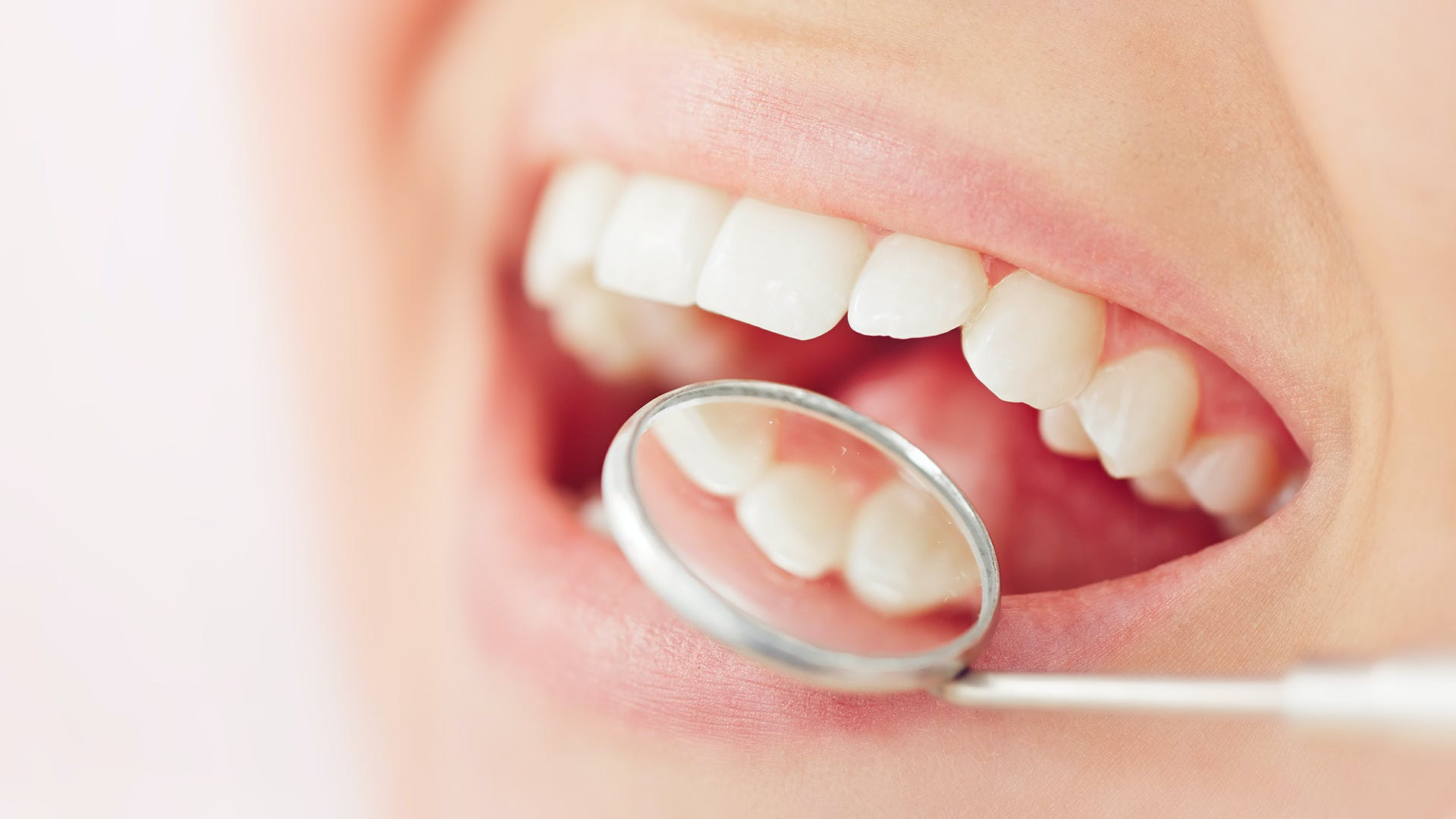 smiling open mouth with dental mirror checking for oral thrush