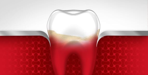 Bleeding Gums Tooth Gum Disease Stage 2 parodontax