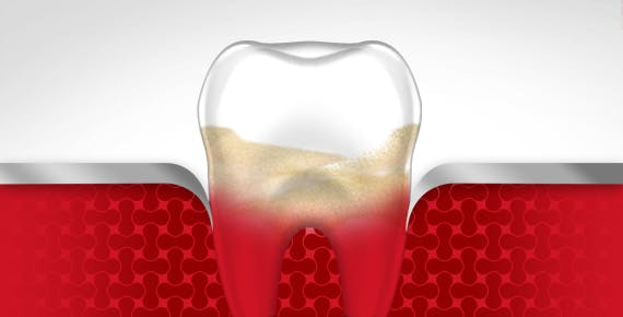 Bleeding Gums Tooth Gum Disease Stage 3 parodontax