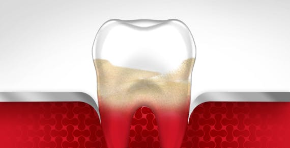 Bleeding Gums Tooth Gum Disease Stage 4 parodontax