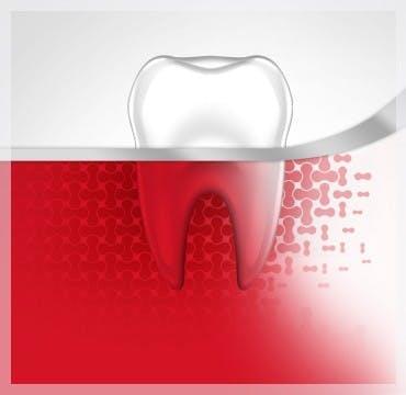 Bleeding Gums Tooth Gum Disease Stage 1 parodontax