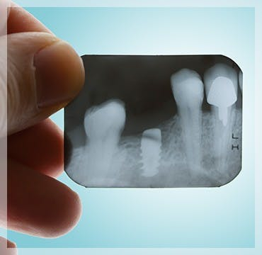X-Ray Teeth Gum Disease parodontax