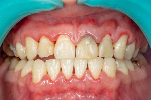 Close-up of bared teeth and gums afflicted with periodontitis