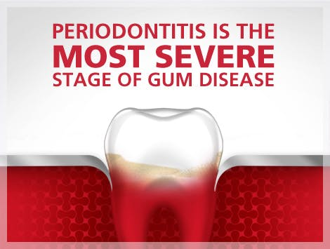 periodontitis is the most severe stage of gum disease