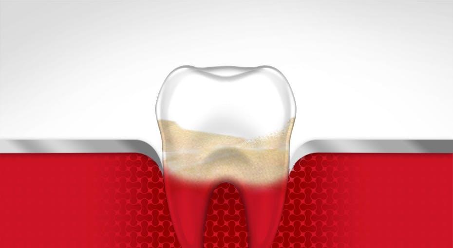 Bleeding Gums Tooth Gum Disease Stage 3 parodontax
