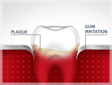 Imagen de diente con placa e irritación de las encías