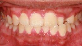 gingivitis example