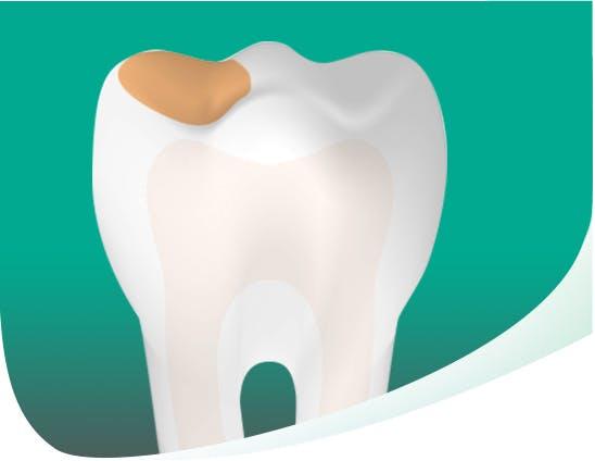 Dent cariée sur fond vert