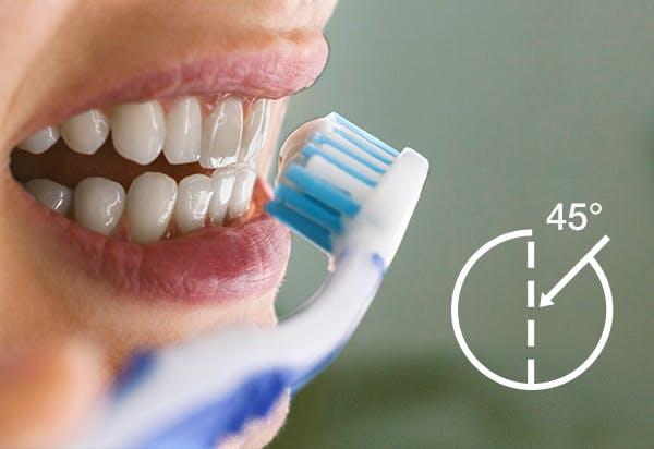 brushing teeth at 45-degree angle