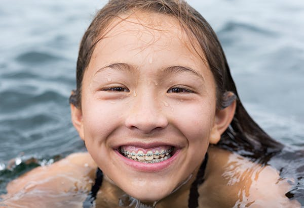 Girl With Braces Swimming
