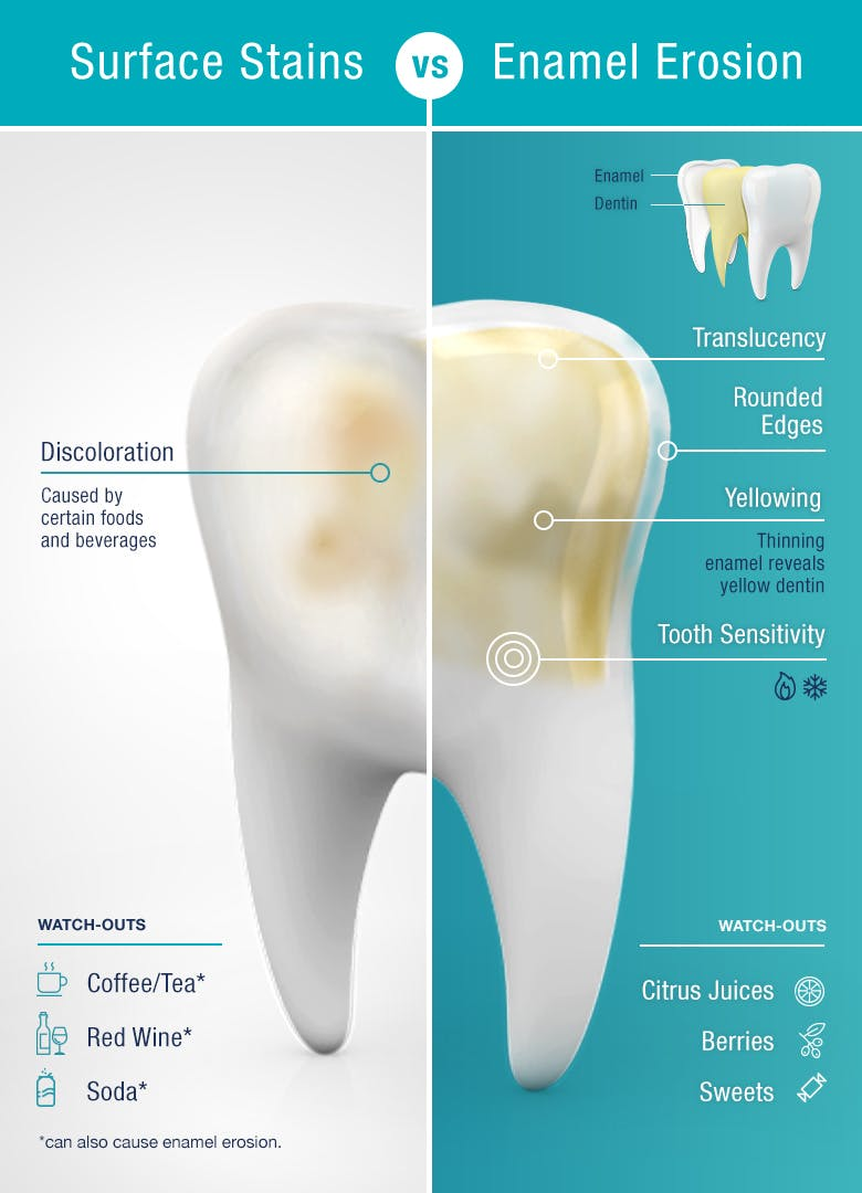 tooth showing difference between surface stains and enamel erosion